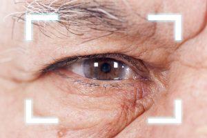 senior man having a cataract surgery